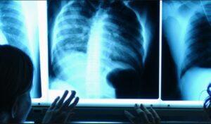 Radiología Heliscan